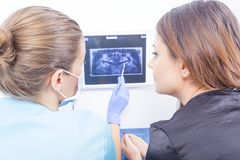 Doctor explaining dental xray Royalty Free Stock Images