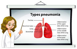 Doctor explaining types of pneumonia Stock Photos