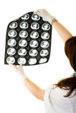 doctor female looking lungs xray fotografering för bildbyråer