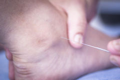 Doctor hand acupuncture needle dry needling Stock Images