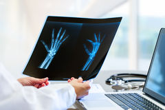 Doctor hands holding x ray at desk. Close up of Female doctor at desk with laptop holding and reviewing trauma x-ray royalty free stock photography