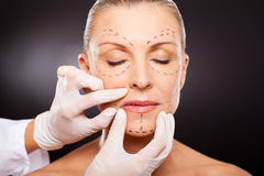 Cosmetic surgery. Doctor hands on mid age woman before cosmetic surgery Royalty Free Stock Photography