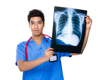 Doctor hold with x ray film Royalty Free Stock Photography
