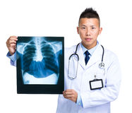 Doctor hold with x-ray Royalty Free Stock Images