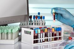 Doctor holding blood test tube in front of computer of the labor Royalty Free Stock Photography