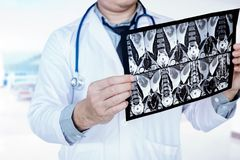 Doctor holding and checking chest x-ray film or roentgen image i. N ward hospital Stock Photos