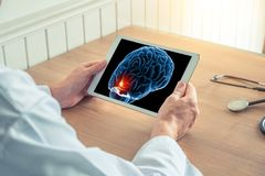 Doctor holding a digital tablet with x-ray of brain with pain on the front. Headache migraine or trauma concept. Doctor holding a digital tablet with x-ray of royalty free stock photos