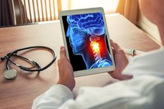 Doctor holding a digital tablet with x-ray of 3D skull. Pain on the neck. Headache migraine or trauma concept. Doctor holding a digital tablet with x-ray of 3D stock images