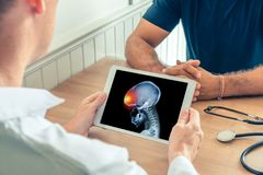 Doctor holding a digital tablet with x-ray of front of the skull head of the patient. Brain cancer headache or trauma concept. Doctor holding a digital tablet royalty free stock images