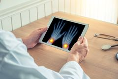 Doctor holding a digital tablet with x-ray of hands. Pain on the wrists. Osteoarthritis concept stock images