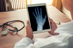 Doctor holding a digital tablet with x-ray of a left hand. Stethoscope and syringe on the desk. Osteoarthritis concept royalty free stock image