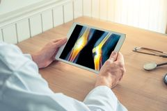 Doctor holding a digital tablet with x-ray of legs with pain royalty free stock images