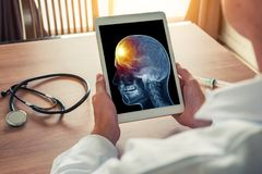 Doctor holding a digital tablet with x-ray of skull. Pain on the front of the brain. Headache migraine or trauma concept. Doctor holding a digital tablet with x royalty free stock photo