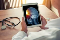 Doctor holding a digital tablet with x-ray of skull. Pain on the front. Headache migraine or trauma concept. Doctor holding a digital tablet with x-ray of skull stock photo