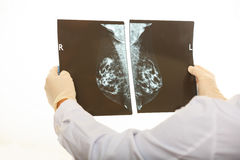 Doctor holding a mammography on white background Royalty Free Stock Photography