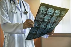 Doctor holding MRI brain in medical office stock image