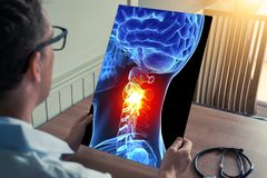 Doctor holding a x-ray of 3D skull head with pain in the neck in medical office. Headache migraine or trauma concept. Doctor holding a x-ray of 3D skull head royalty free stock images