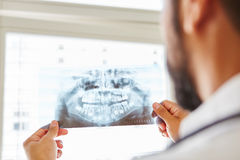 Doctor holding x-ray image from jaw. And making diagnostic for oral surgery royalty free stock photo