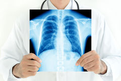 Doctor holding x-ray image of normal male chest Stock Photo