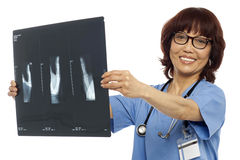 Doctor holding x-ray report. Analyzing it Stock Images