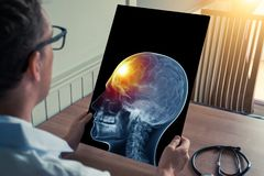 Doctor holding a x-ray of skull head with pain in the front of the brain in medical office. Headache migraine or trauma concept. Doctor holding a x-ray of skull stock photos