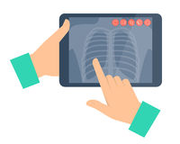 Doctor holding a tablet computer with lung radiography. Telemedi. Cine, telehealth flat concept illustration. Hands, chest x-ray image. Vector design element for Royalty Free Stock Photos