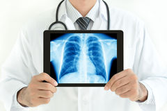 Doctor holding tablet pc with normal male chest x-ray image. Doctor holding tablet computer with normal male chest x-ray image - isolated on white background stock image