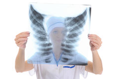 Doctor holding an x-ray Royalty Free Stock Images