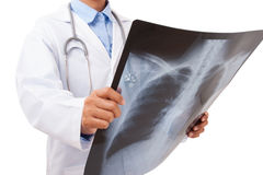 Doctor holding x-ray or roentgen image. Royalty Free Stock Photo