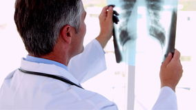 Doctor holding x-ray up to study it stock video