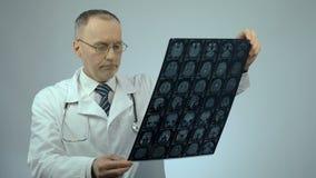 Doctor infeliz que mira la exploración de cerebro de MRI, trastorno sobre la condición de la salud del paciente almacen de video
