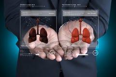 Doctor joven que muestra los pulmones Fotos de archivo