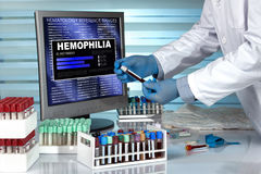 Doctor in lab examining blood sample with the text hemophilia in. Technician with blood sample and text hemophilia in the software of analysis laboratory / Stock Photo