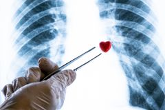 Doctor or lab technician in a white glove holding tweezers a souvenir heart over a chest X-ray. Concept of love or illness,. Doctor or lab technician in a white stock photo