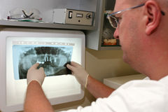 Doctor looking. A doctor looking at a X ray stock images