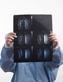 Doctor Looking At MRI X-Ray Stock Images