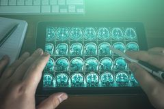 Doctor looking at tablet on his table with MRI brain scan or x-ray, modern medical diagnostic concept. Top view royalty free stock photos