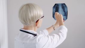 Doctor is looking at an x-ray of the chest lungs. The concept of pulmanology, pneumonia, coronovirus COVID-19,