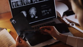 Doctor looking at X-ray of the evening at a laptop stock video