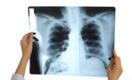 Doctor looking at x-ray image Royalty Free Stock Image