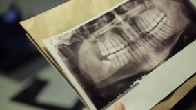 Doctor looking at x-ray of jaw stock video footage