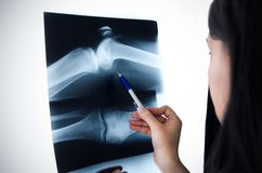 Doctor looking at the x-ray Stock Images