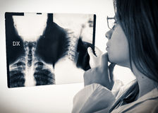 Doctor looks at x-rays Royalty Free Stock Images