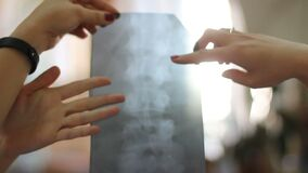 Doctor looks x-ray of the spine
