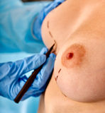 Doctor makes dotted line on female breast Royalty Free Stock Photography