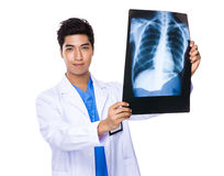 Doctor man holding with x ray Royalty Free Stock Photos
