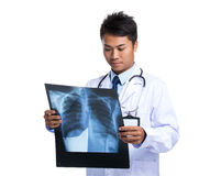 Doctor man look at the x ray film Royalty Free Stock Photography