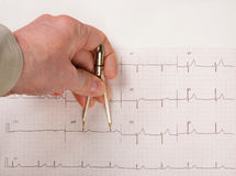 Doctor Measuring EKG Intervals With Calipers Royalty Free Stock Photography