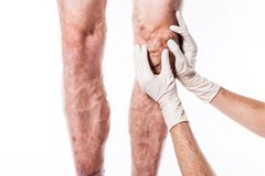 Doctor in medical gloves examines a person with varicose veins o Stock Photos
