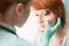 Doctor medicating eye wound. Photo of doctor in medical gloves medicating eye wound Stock Photography